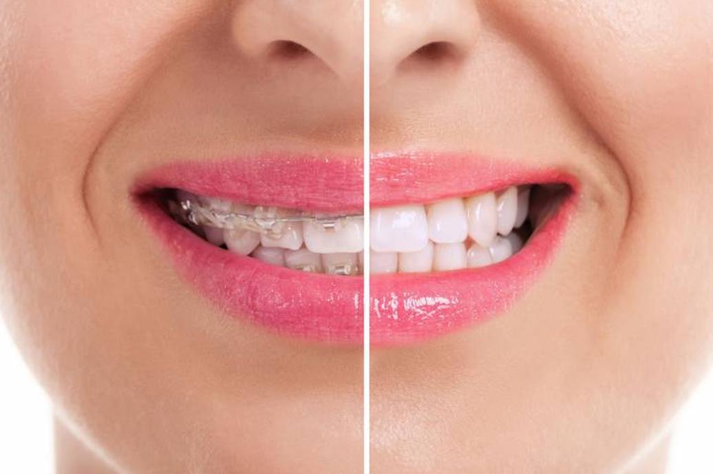 Cuidados a Ter Com o Aparelho Ortodontico