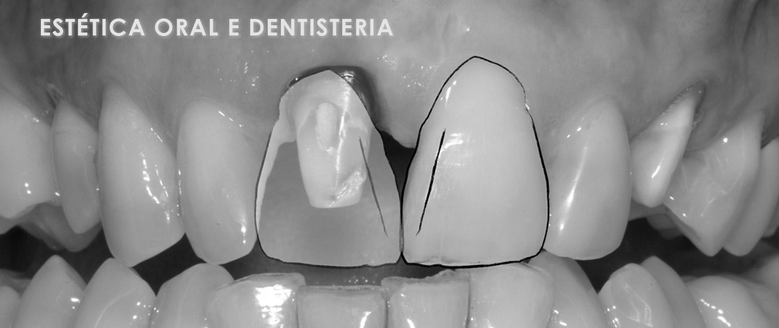 Estética Oral e Dentisteria para áreas clínicas medicis