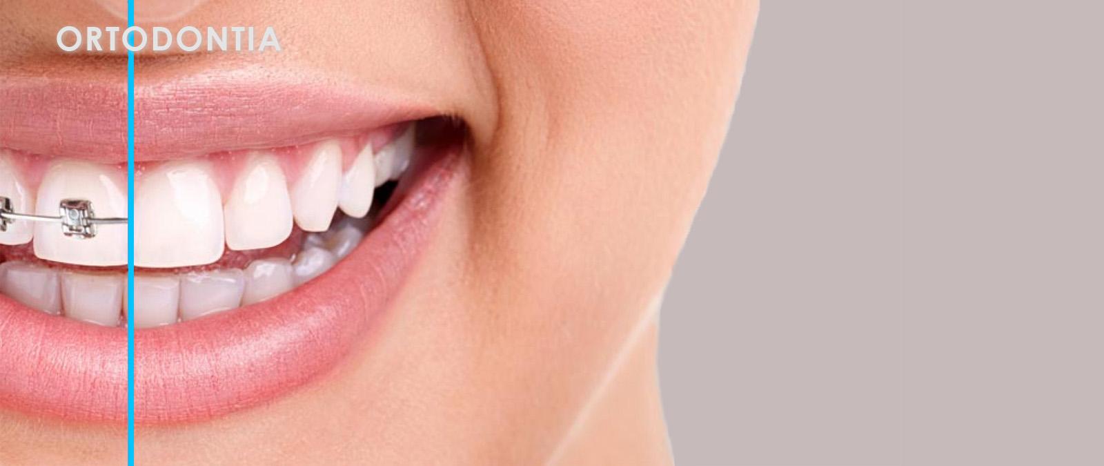 Ortodontia para áreas clínicas medicis
