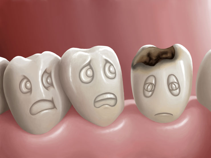 cáries cirurgia oral traumatismo