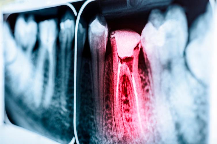 cirurgia oral endodontia raio x