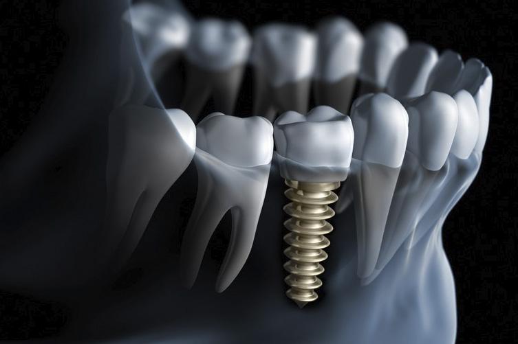 implante dentário exemplo