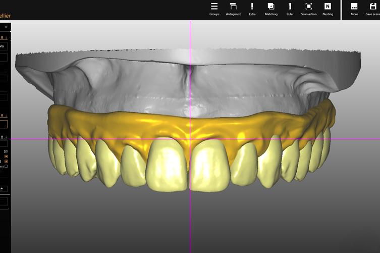 prostodontia scan