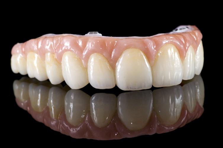 Prostodontia prótese
