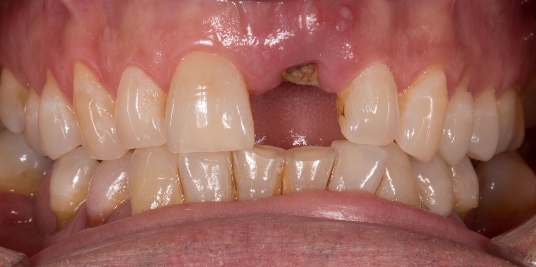 implante unico (1) antes