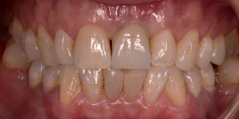 implante unico (1) depois